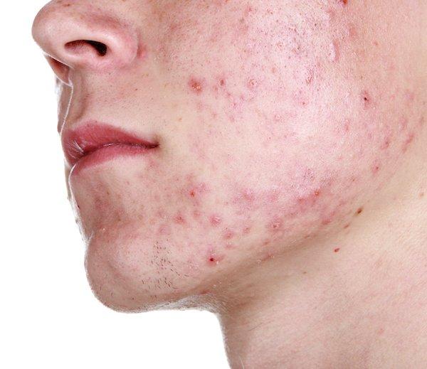 akne-vulgaris