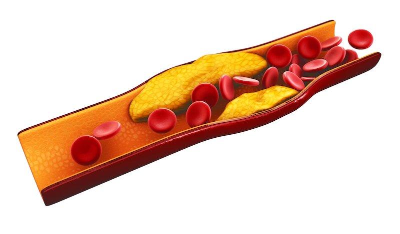 cholesterin-arterien