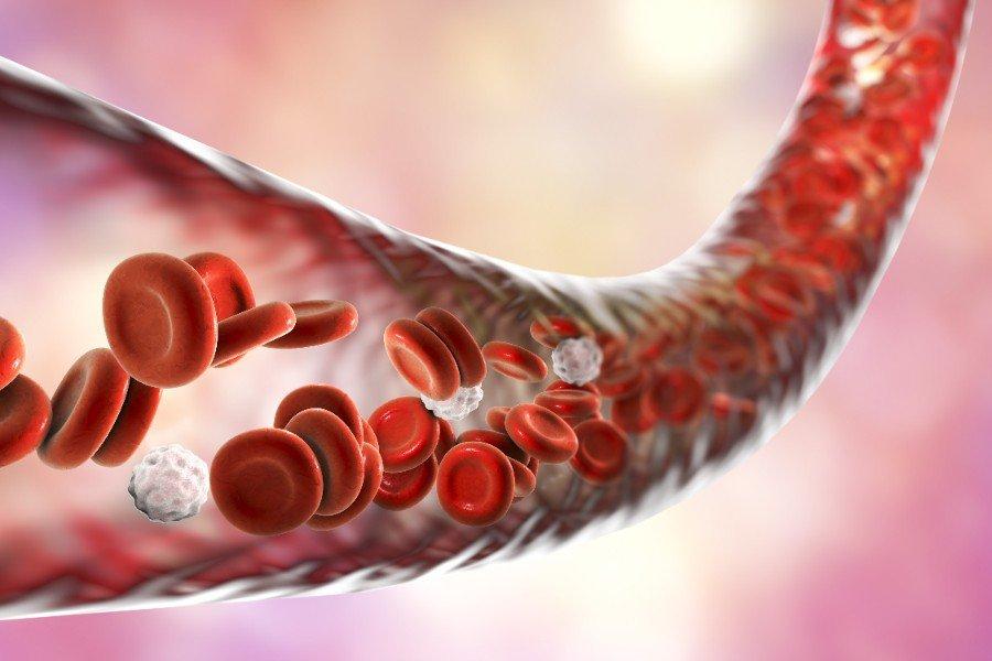 cholesterinspiegel-gefaesskrankheiten