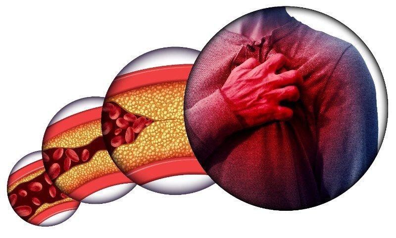 cholesterinspiegel-symptome