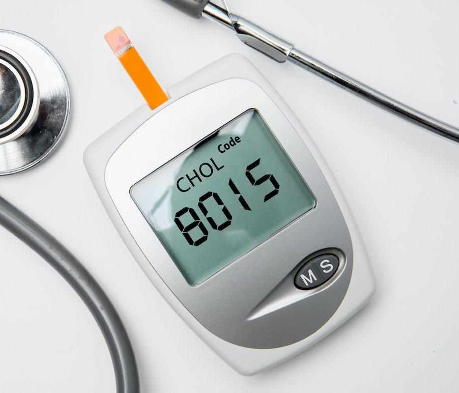 cholestserinwerte-testen
