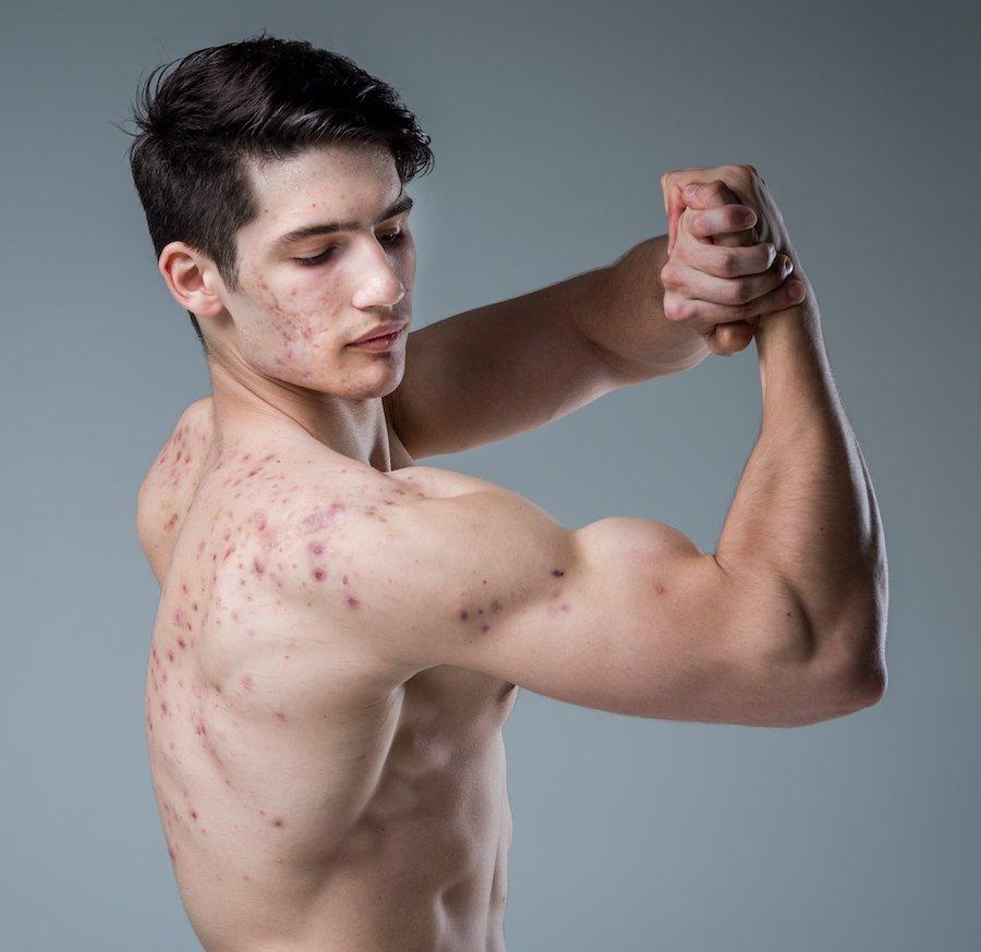 steroidakne-doping-akne