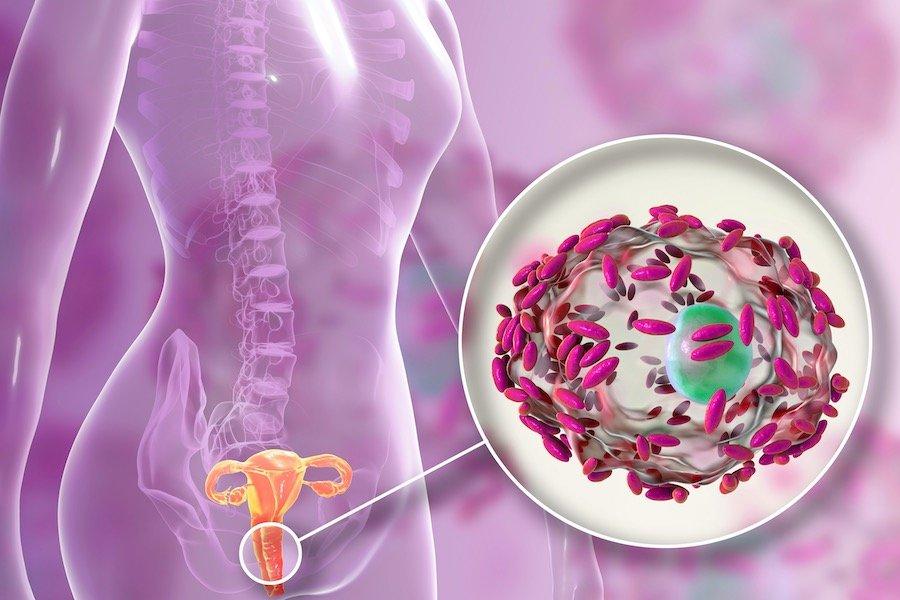 bakterielle-vaginose