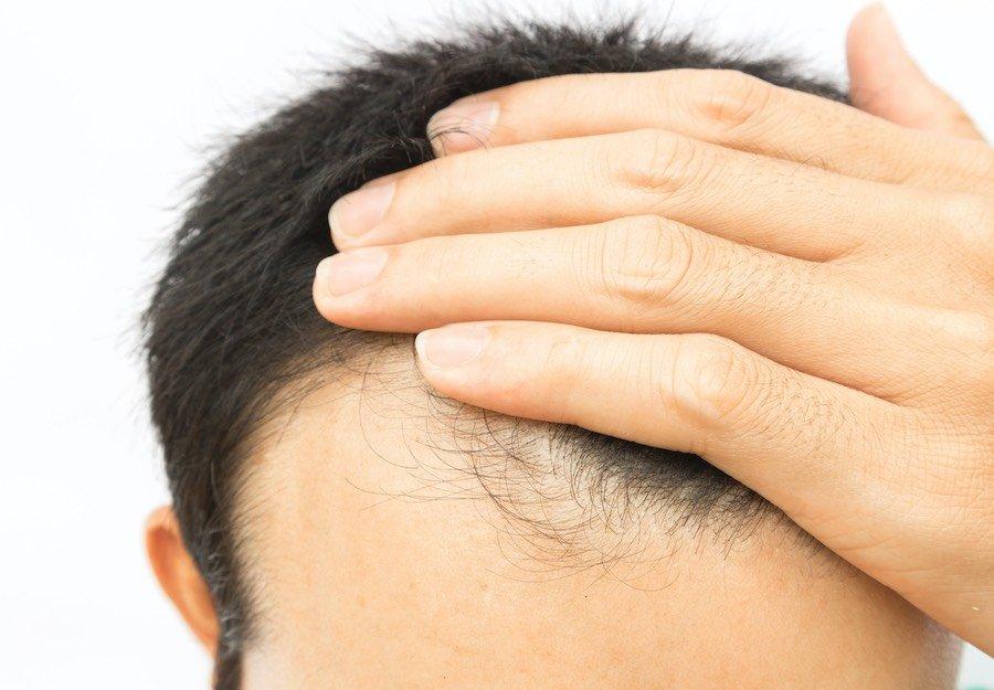 erblich-bedingter-haarausfall-genetisch