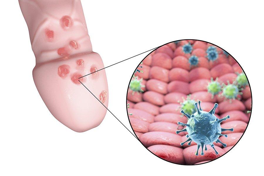 herpes-genitalis-genitalherpes