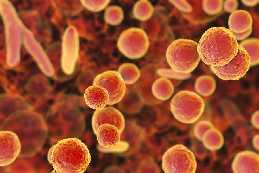 ureaplasma-infektion-bakterien