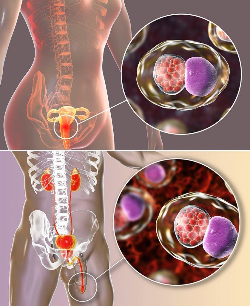 urethritis-harnwegsinfektion-harnroehrenentzuendung-frau-mann